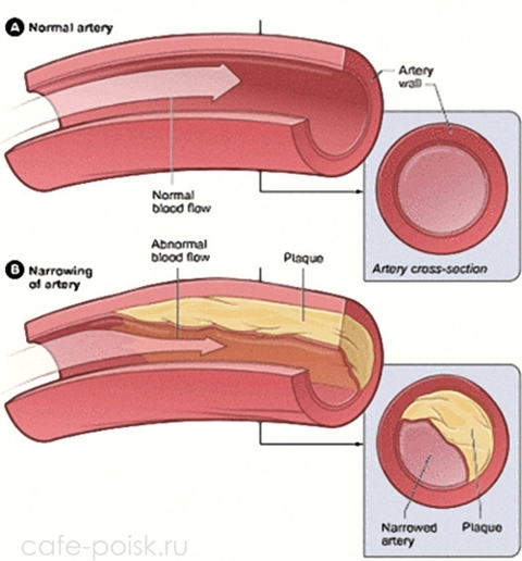 повышенный холестерин у детей причины
